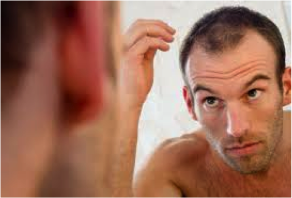 common-causes-of-hair-loss1