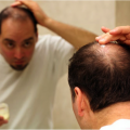 common-causes-of-hair-loss2