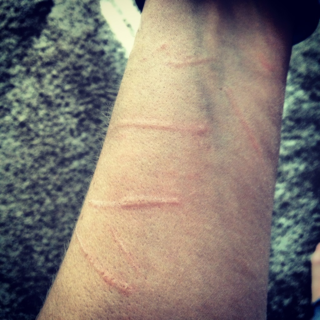 My arm a few days ago after a rough afternoon